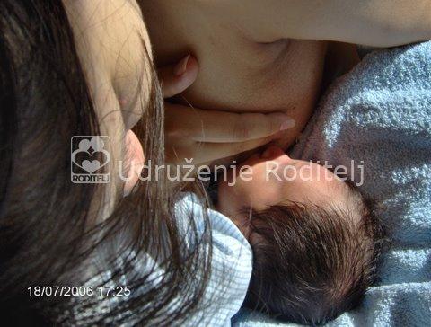 dojenje, prepunjenost dojki
